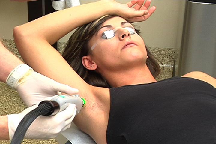 лазерная эпиляция процесс