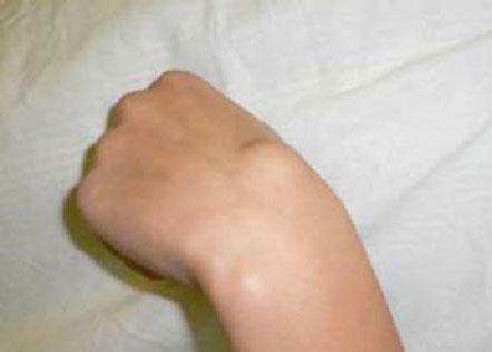 лечение суставов в спб
