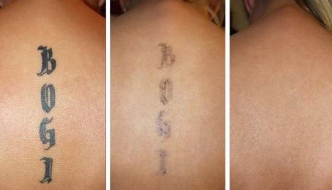 Убрать татуировку в домашних условиях