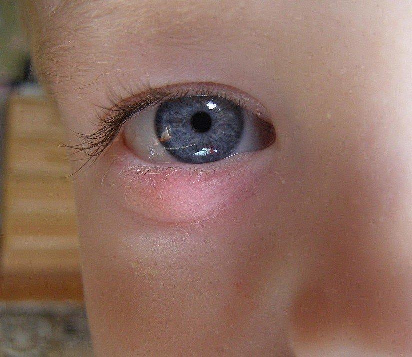 Как лечить ячмень на верхнем веке у ребенка 3 лет
