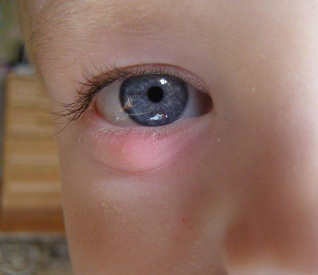 Как лечить ячмень на глазу у ребенка на веке