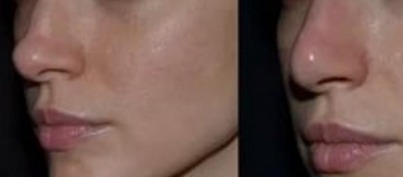 Изменение носа