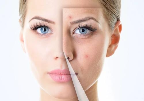 Акне и повышенная жирность кожи: причины и методы борьбы