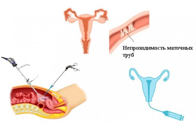 Гистеросальпингография: этапы проведения процедуры