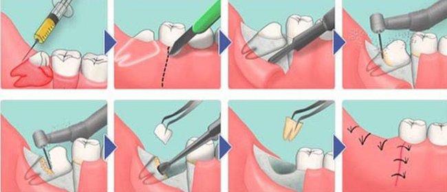 Как происходит удаление молочного зуба