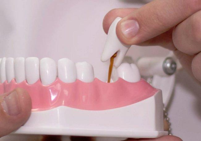 Что такое ортопедическая стоматология