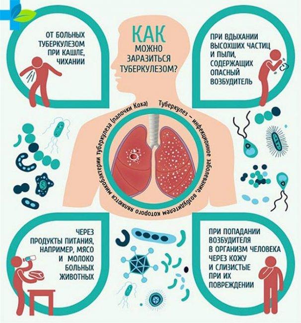 Как происходит профилактика туберкулеза