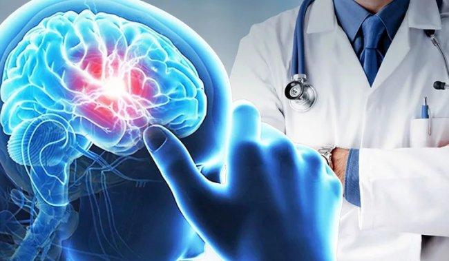 Ишемический инсульт - способы лечения